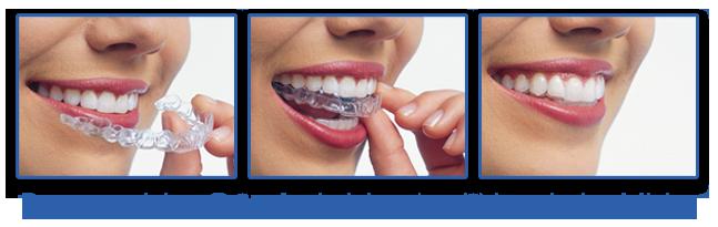 Los-coches-dentistry-invisalign