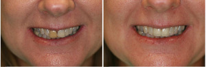 before-after-porcelain-veneers-carlsbad-300x98