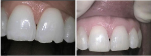 before-after-porcelan-veneers-carlsbad-dental-300x112