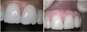 before-after-porcelan-veneers-carlsbad-dental-300x112