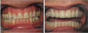 before-after-veneers-carlsbad-300x112