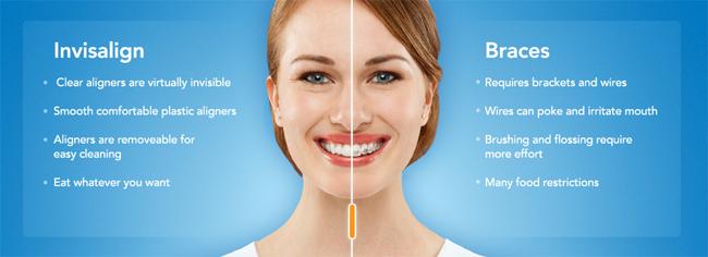 carlsbad-dentist-invisalign