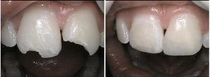 composit-bondings-dentist-carlsbad-300x110