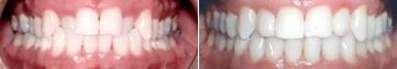 crossbite-before-after